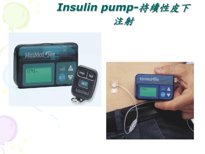 Insulin pump-