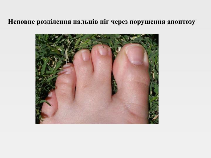 Неповне розділення пальців ніг через порушення апоптозу