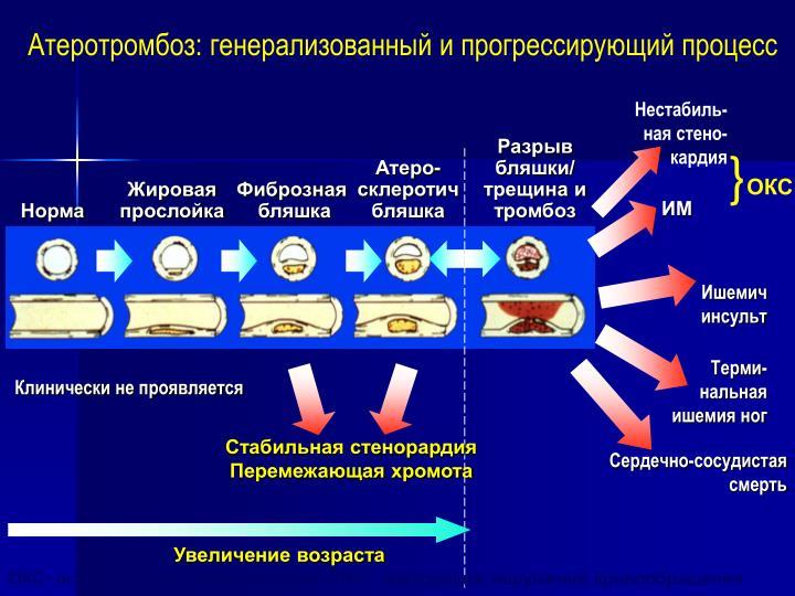 Атеротромбоз: генерализованный и прогрессирующий процесс