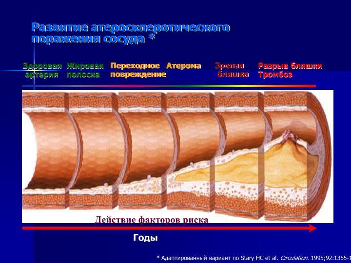 Развитие атеросклеротического
