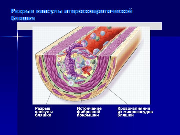 Разрыв капсулы атеросклеротической бляшки