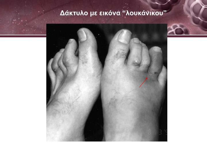 Δάκτυλο με εικόνα