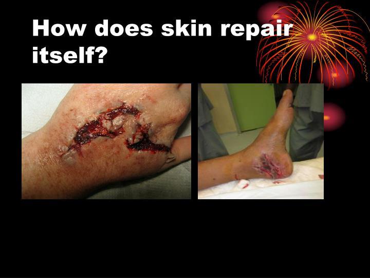 How does skin repair itself?
