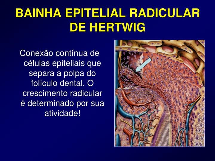 BAINHA EPITELIAL RADICULAR DE HERTWIG