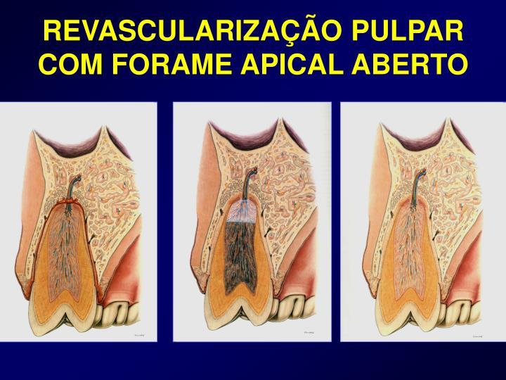REVASCULARIZAÇÃO PULPAR COM FORAME APICAL ABERTO