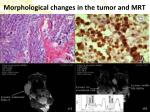 morphological changes in the tumor and mrt