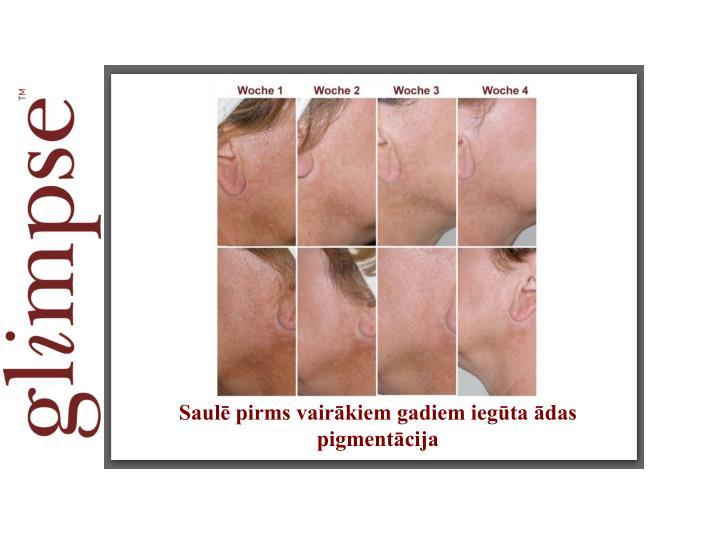 Saulē pirms vairākiem gadiem iegūta ādas pigmentācija