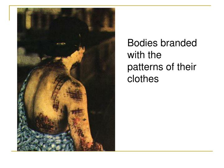 Bodies branded with the patterns of their clothes