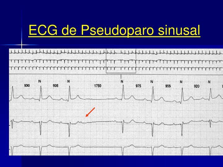ECG de Pseudoparo sinusal