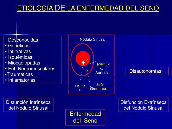 Nódulo Sinusal