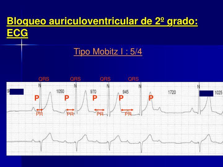 Bloqueo auriculoventricular de 2º grado: ECG