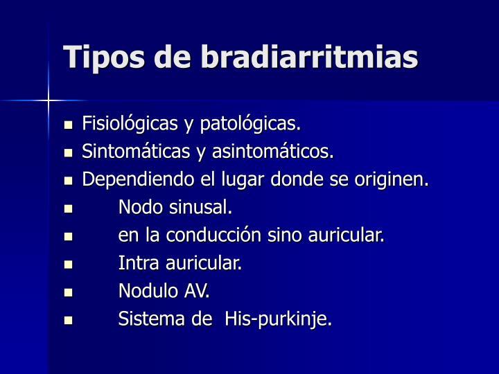 Tipos de bradiarritmias