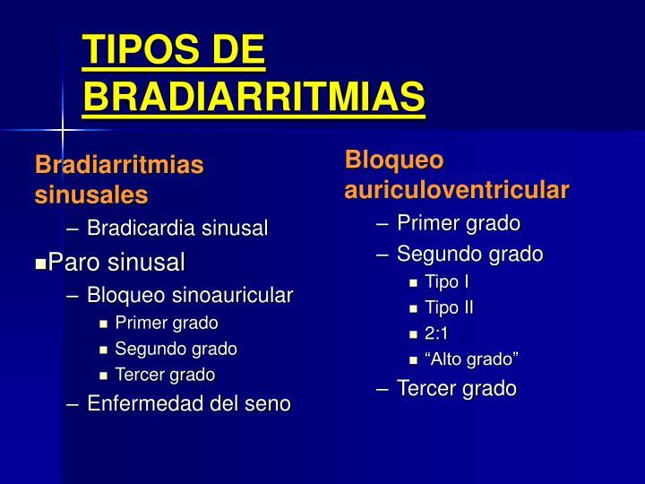Bradiarritmias sinusales