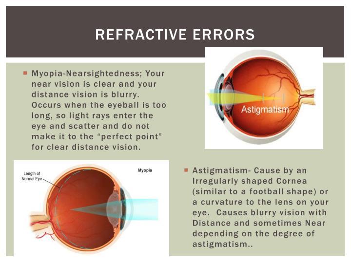 Refractive Errors