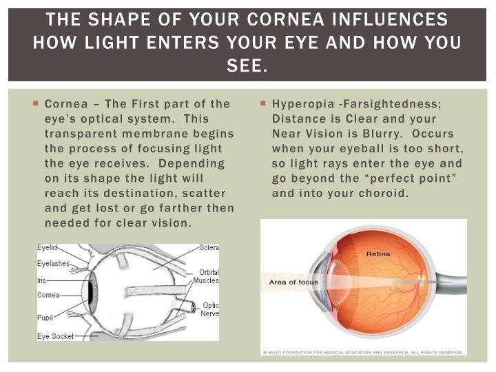 The shape of your Cornea Influences How Light Enters your Eye and how you see.