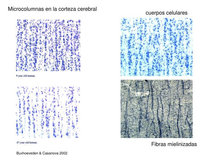 Microcolumnas en la corteza cerebral