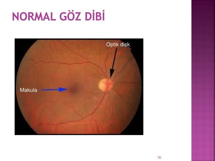 Normal göz