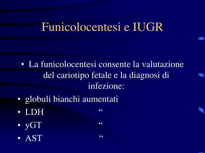 Funicolocentesi e IUGR