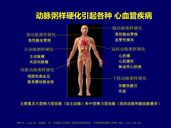 动脉粥样硬化引起各种 心血管疾病