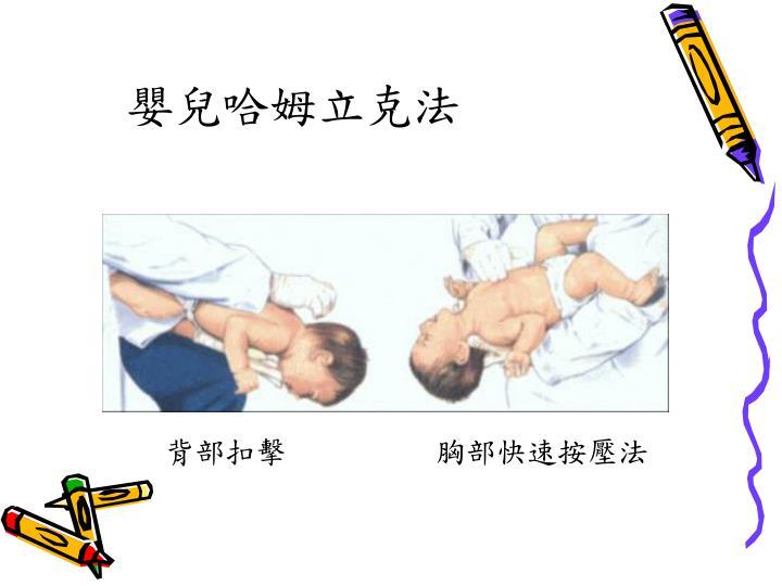嬰兒哈姆立克法