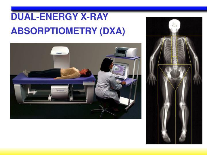 DUAL-ENERGY X-RAY