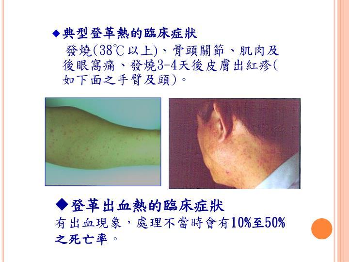典型登革熱的臨床症狀