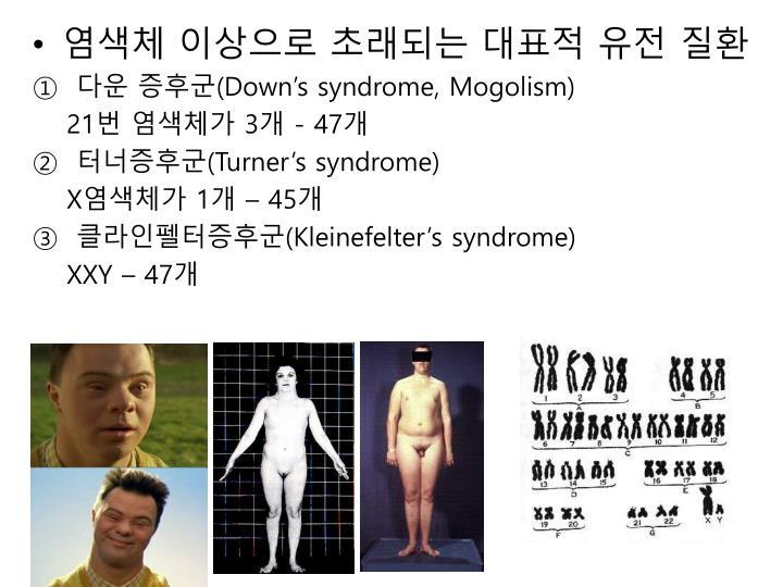 염색체 이상으로 초래되는 대표적 유전 질환