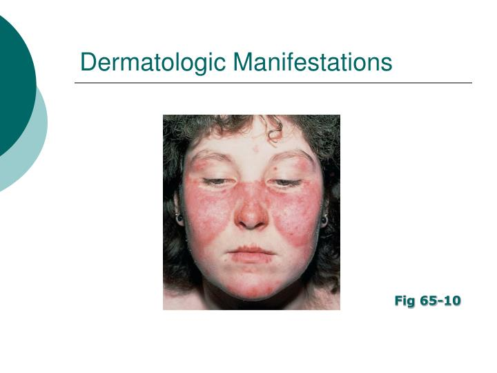 Dermatologic Manifestations