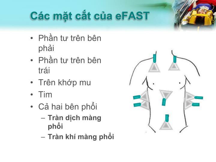 Các mặt cắt của eFAST