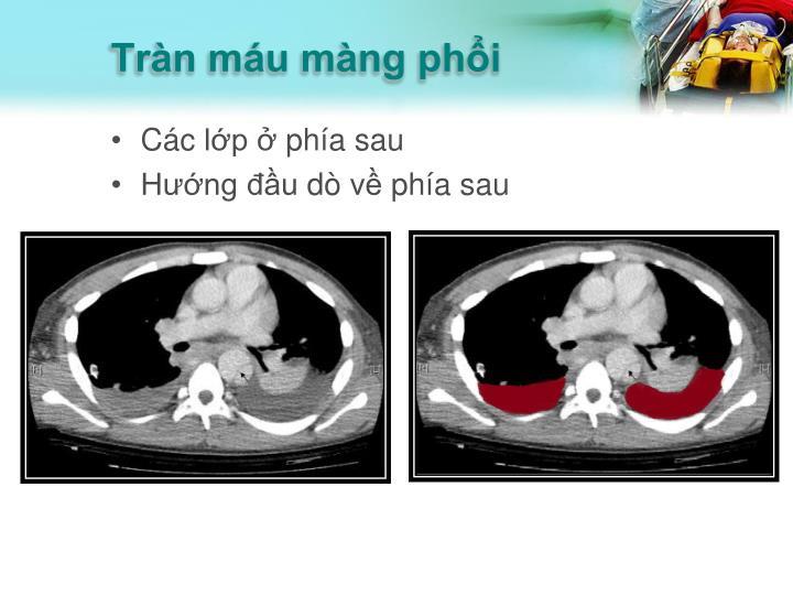 Tràn máu màng phổi