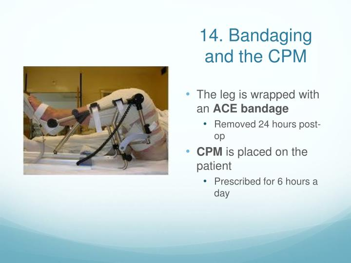 14. Bandaging and the CPM