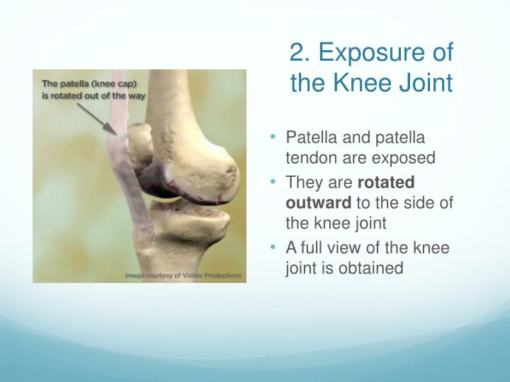 2. Exposure of the Knee Joint