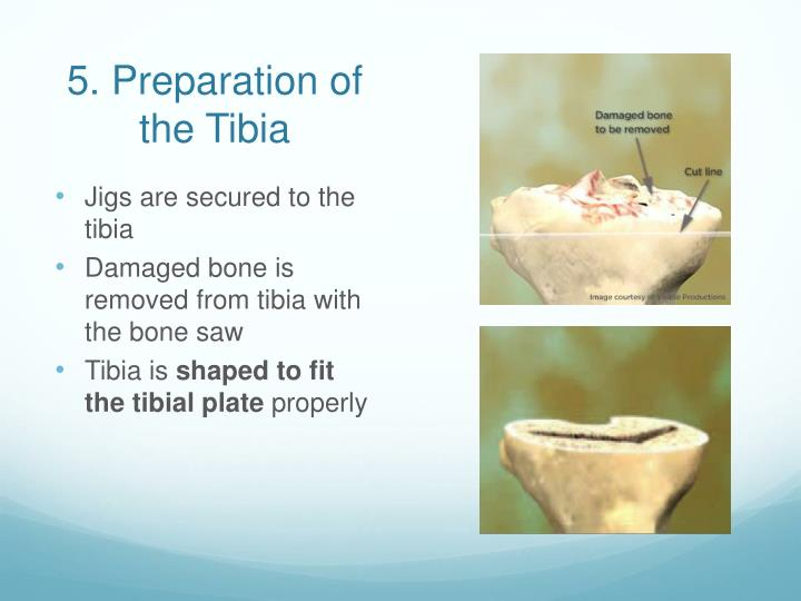5. Preparation of the Tibia
