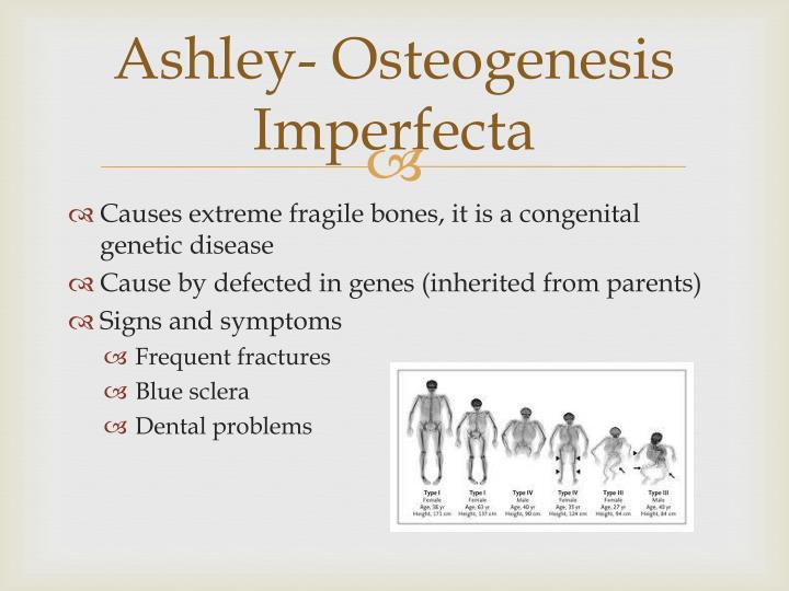 Ashley- Osteogenesis