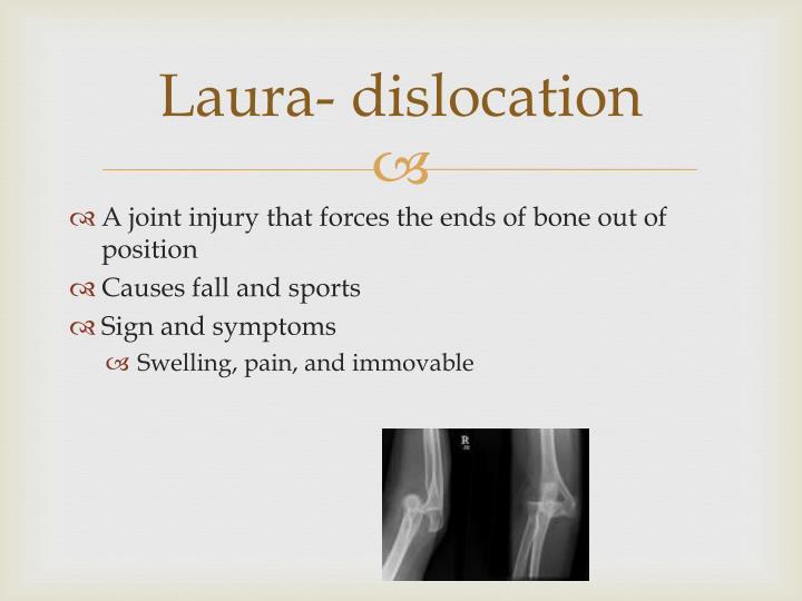 Laura- dislocation