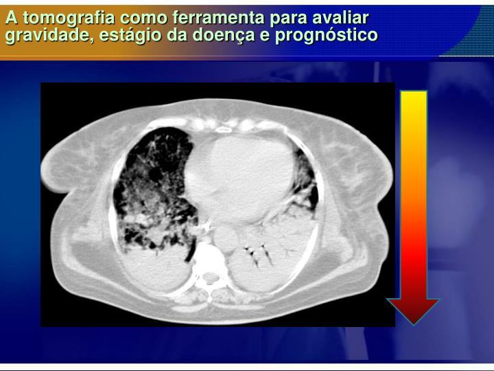 A tomografia como ferramenta para avaliar
