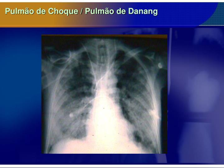 Pulmão de Choque / Pulmão de
