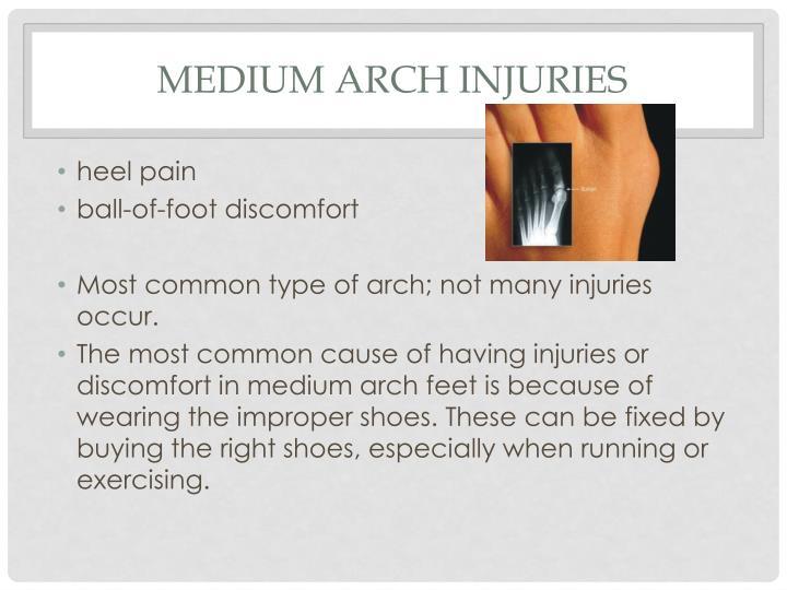 Medium arch injuries