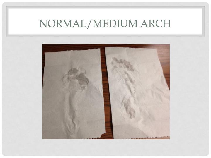Normal/Medium Arch