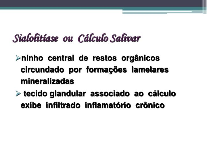 Sialolitíase