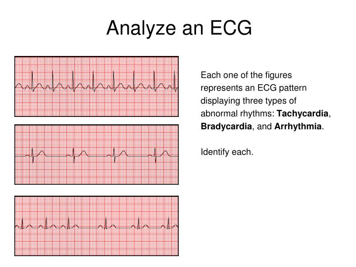 Analyze an ECG