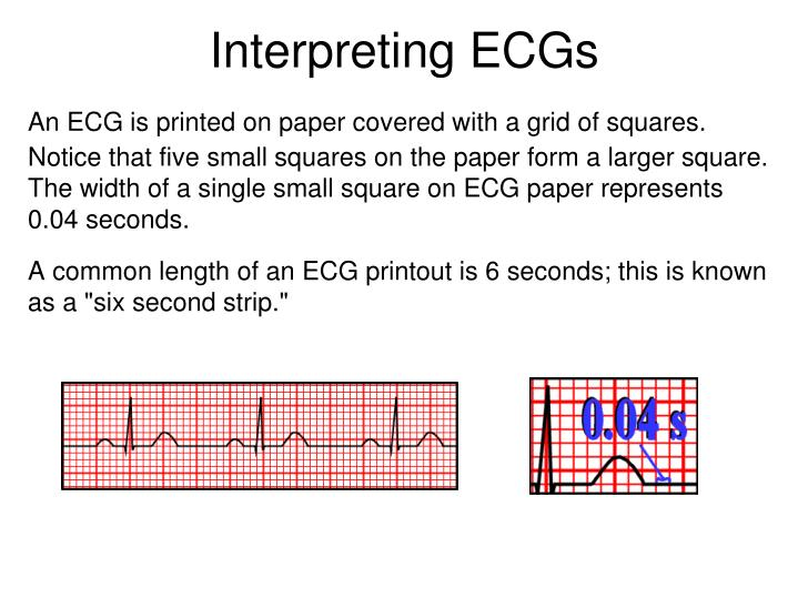 Interpreting ECGs