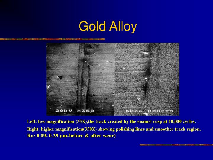 Gold Alloy