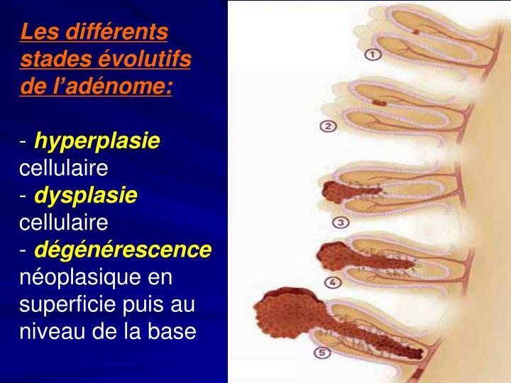 Les différents stades évolutifs de l'adénome: