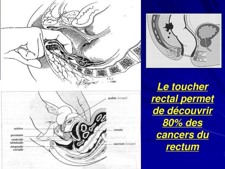 Le toucher rectal permet de découvrir 80% des cancers du rectum