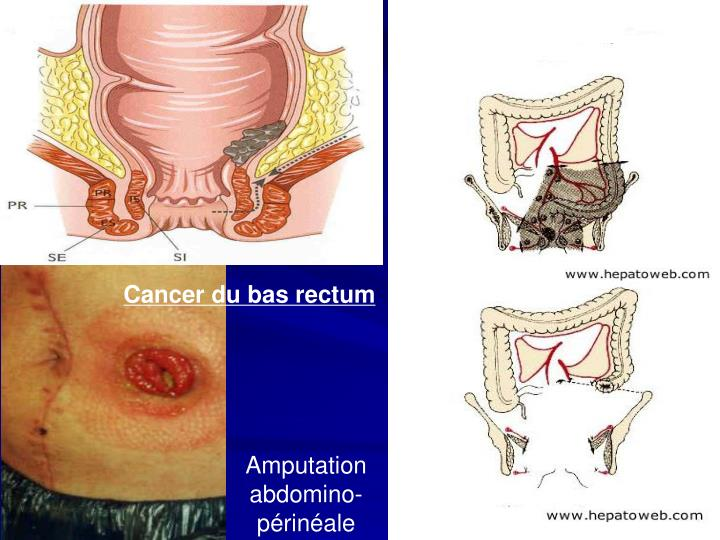 Cancer du bas rectum