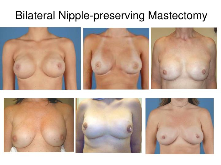 Bilateral Nipple-preserving Mastectomy