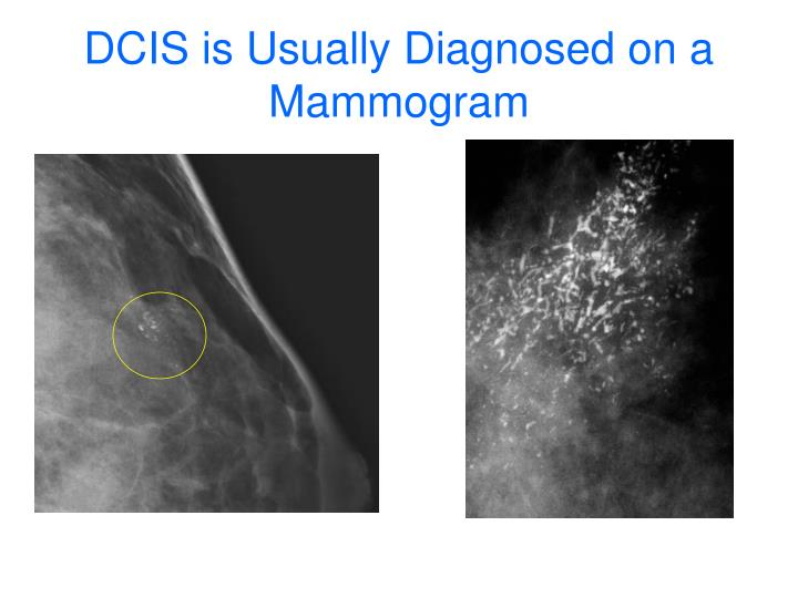 DCIS is Usually Diagnosed on a Mammogram