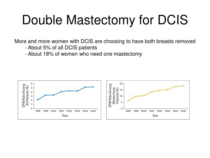 Double Mastectomy for DCIS