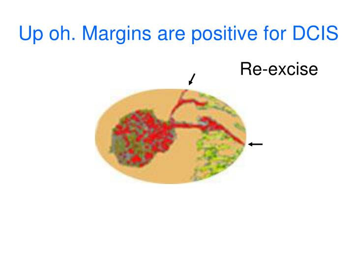 Up oh. Margins are positive for DCIS
